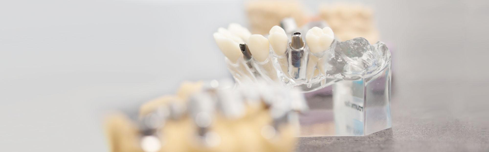 CAD/CAM Dental Esthetic – Fräszentrum in Mönchengladbach
